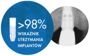 Dlaczego warto wybrać implanty Ankylos? 1 4 300x188 1