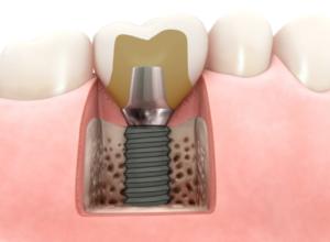 Dlaczego warto wybrać implanty Ankylos? 2 4 300x220 1