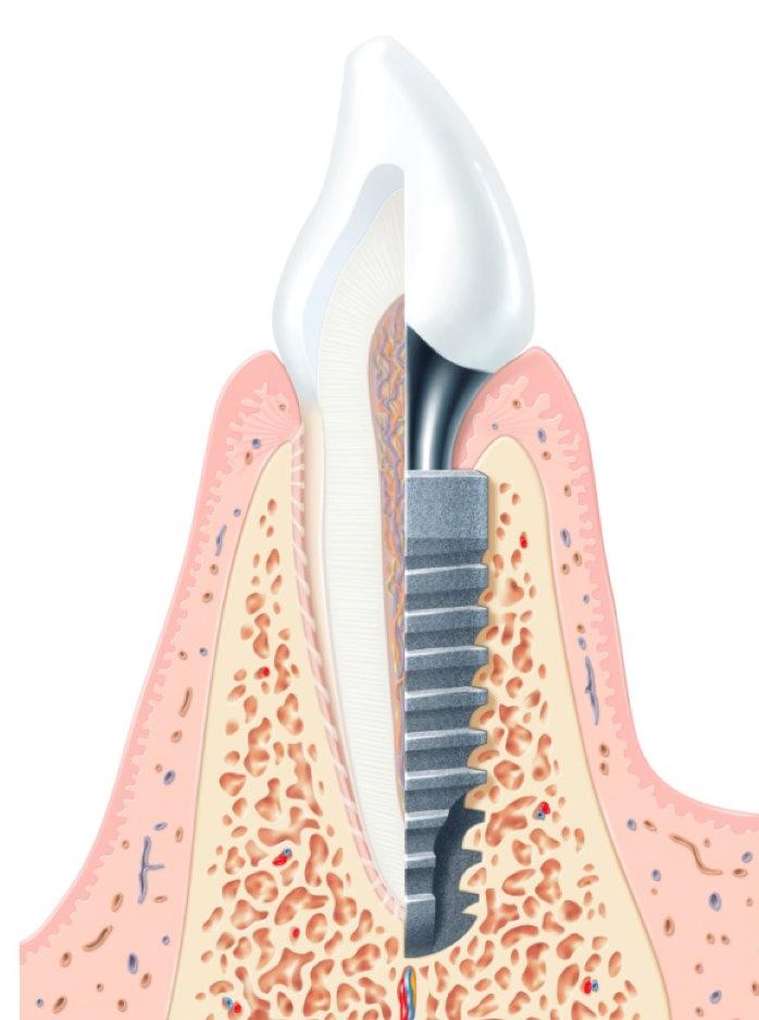 Dlaczego Implanty w DentiCo? Jak wygląda implant Implanty w Dentico