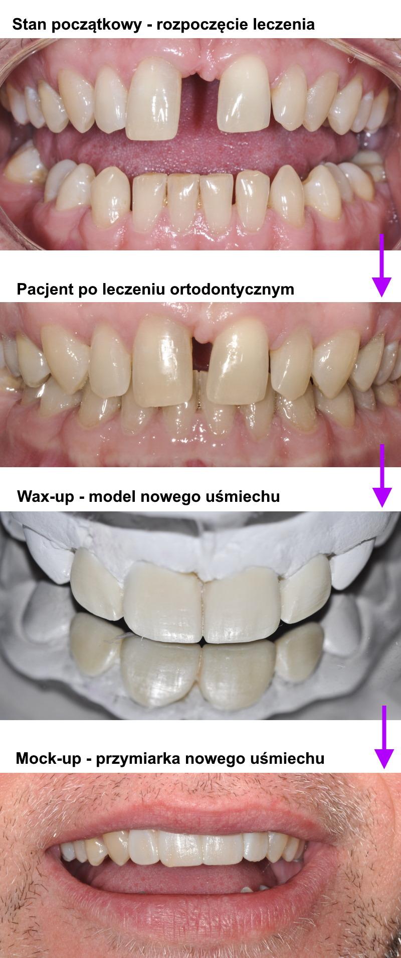 Licówki Flow Incjection - Bonding <span>Gdańsk</span> Pan Sławomir przed po new2