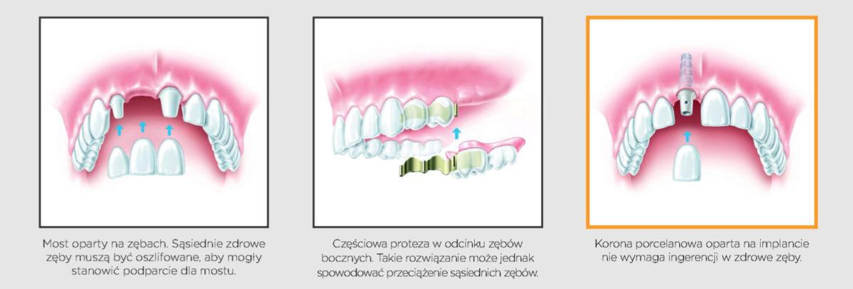 Implanty w przypadku braku pojedynczego zęba 3 6